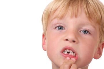 Kleiner Junge mit Zahnlücke
