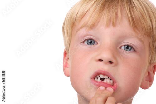 canvas print picture Kleiner Junge mit Zahnlücke