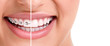 Leinwanddruck Bild - Healthy smile with braces