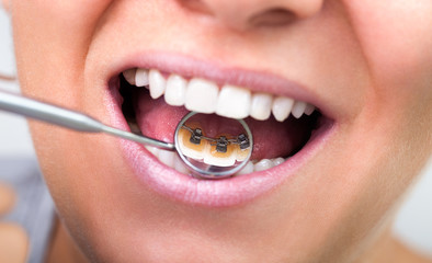invisible lingual braces