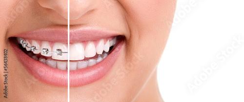 Leinwanddruck Bild Healthy smile with braces