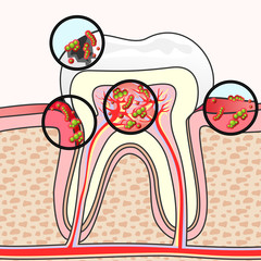 Dental diseases