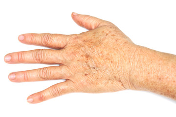 Sign of aging - freckles on hand