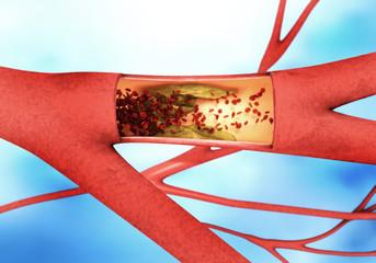 Ablagerung und Verengung einer Aterie - Arteriosklerose