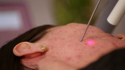 laser treatment, the removal of acne