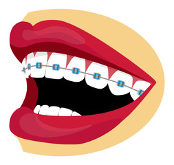 Braces illustration