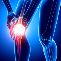 X-ray human of knee pain