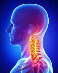 x-ray illustration of neck pain