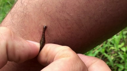 Removal by hand of Jawed Land leech with legs of a man