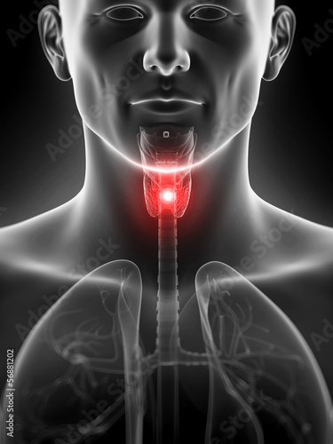 3d rendered illustration of an inflamed thyroid