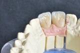 Dental prosthesis, upper incisors