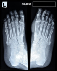 an x-ray of mature man's feet.