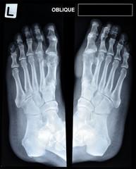 an x-ray of mature man's feet.