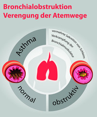 Asthma-Bronchialobstruktion