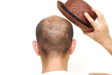 薄毛を帽子で隠す男性