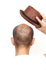 帽子を被る薄毛の男性