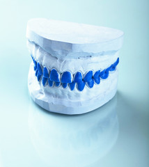 ndividual plaster dental molds to make trays