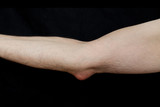 Olecranon bursitis, also known as student's elbow