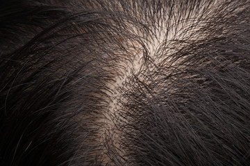 Thinning hair and oily scalp