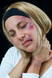 woman with bruises