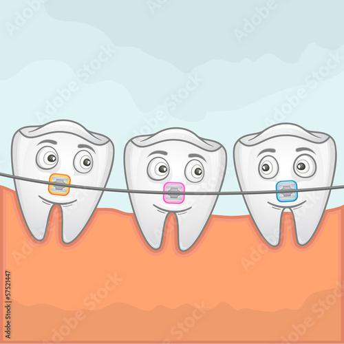 Vector illustration of teeth using braches for treatment