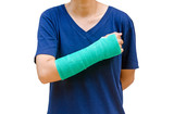 green cast on hand and arm isolated