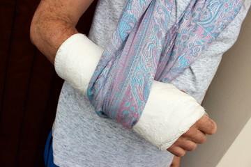 braccio ingessato