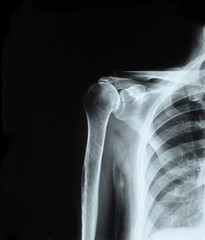 X-ray of shoulder joint