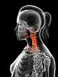 painful cervical spine