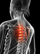 painful thoracic spine