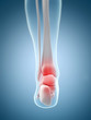inflamed ankle