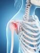 inflamed shoulder joint