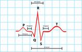 Normal Atrial And Ventricular Depolarization Description poster