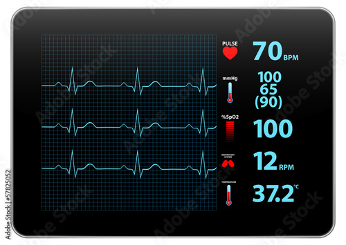 Modern Electrocardiogram Monitor Device Display - 57825052