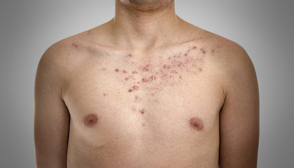 Acne, scars and keloids in the chest of a young man.