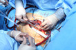 typical view of a surgical operation.