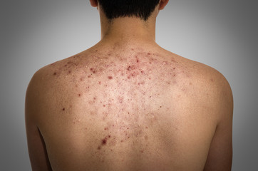 Acne, scars and keloids in the back of young man.