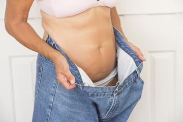 Mature woman lost weight through diet