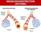 inflamation of the bronchus causing asthma
