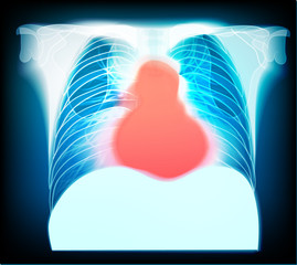 Pain in chest. Abstract medical illustration.