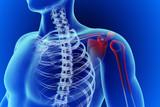 shoulder inflammation poster