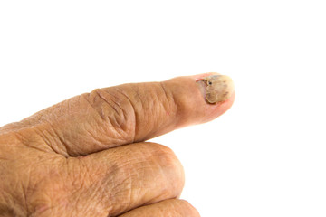 nail detachment  of old woman's finger