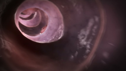 Animation showing a tumor inside of the colon