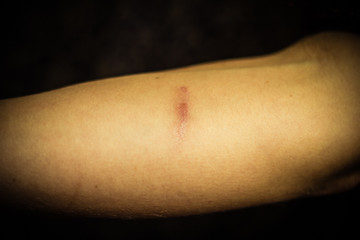 Woman's forearm with scar from self harm