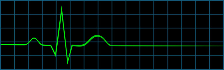 Electrocardiogram Showing Last Heart Beat