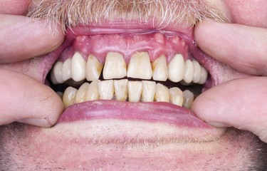 Problems with the teeth and gums
