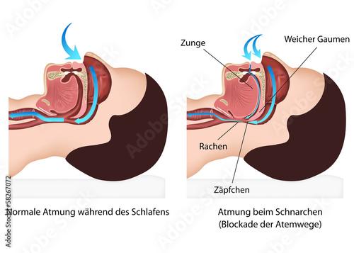 Atmung während des Schnarchens - 58267072
