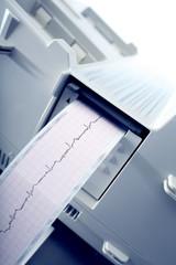 Cardiogram recording.