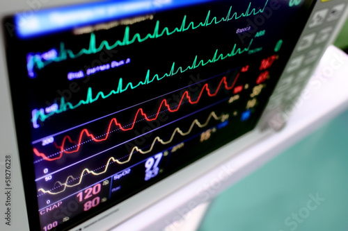 Medical background. Monitor with varicolored schedules (curves)