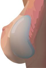 protesi del seno